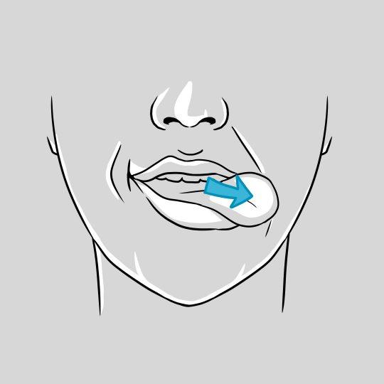 Terapia miofuncional utilizada para mejorar la apnea del sueño y los ronquidos crónicos